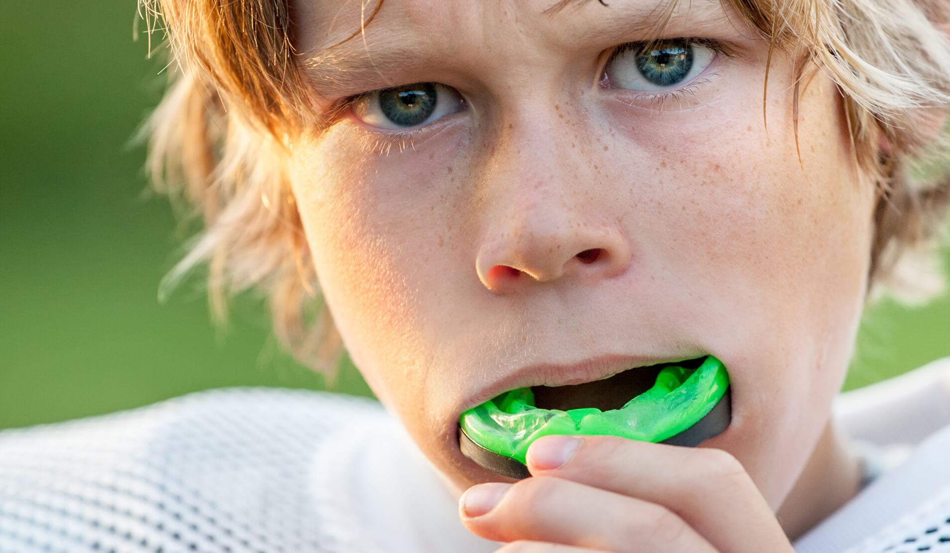 Athletic Mouthguard in Newport Beach