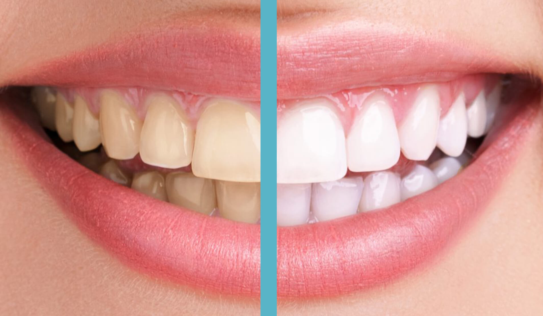 Portside Dentistry - Newport Beach, CA Dentists - Teeth Whitening